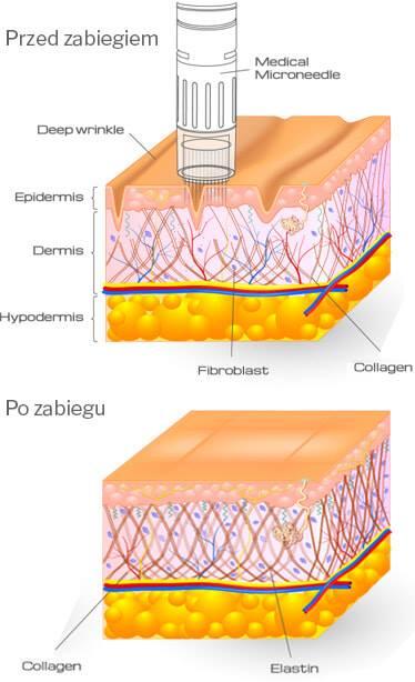 Mezoterapia-Frakcyjna-Mikroiglowa-wroclaw